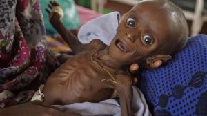Dette bildet er hentet fra google. Gutten i innlegget var om mulig enda litt tynnere, og hadde tenner.